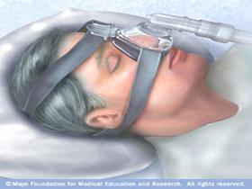 Sistema de Presion Continua (CPAP)
