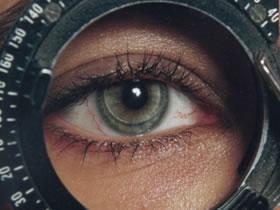 revision-ojo